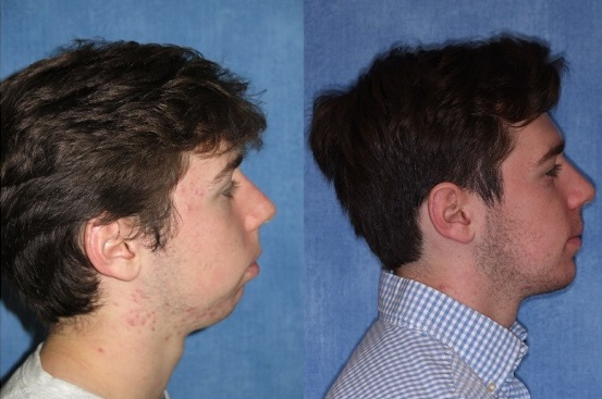 Before and after corrective jaw surgery